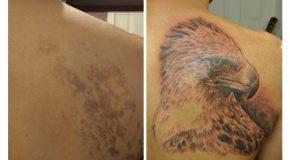 Les tatouages les plus beaux pour camoufler des taches de naissance